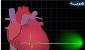 معاون وزیر بهداشت:سکته های قلبی و مغزی علت مرگ ۹۰ هزار ایرانی