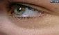 چطور چربیهای روی پلک چشم را از بین ببریم؟