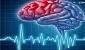 در ایران سالانه به ازای هر 100 هزار جمعیت 7 نفر دچار سکته مغزی میشوند